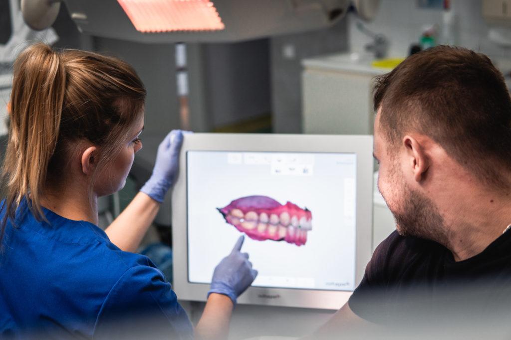 pierwsza wizyta ortodontyczna - skany 3D